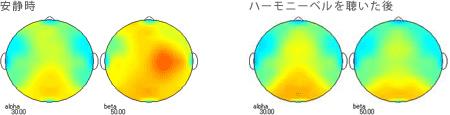 <被験者 1> ハーモニーベルCDを聴く前の安静時と聴いた後の脳波 38歳男性の場合