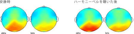 <被験者 2> ハーモニーベルCDを聴く前の安静時と聴いた後の脳波 35歳女性の場合