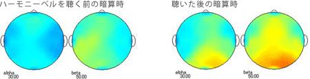 <被験者 1> ハーモニーベルCDを聴くと聴いた後の暗算計算時の脳波 38歳男性の場合