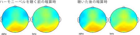 <被験者 2> ハーモニーベルCDを聴くと聴いた後の暗算計算時の脳波 35歳女性の場合