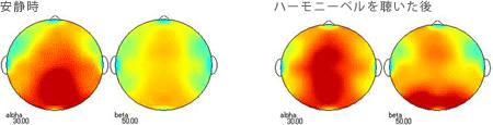 <被験者 1> 2ヶ月間毎日ハーモニーベルCDを聴いた後、実験時にハーモニーベルCDを聴く前の安静時と聴いた後の脳波 38歳男性の場合