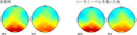 <被験者 2> 2ヶ月間毎日ハーモニーベルCDを聴いた後、実験時にハーモニーベルCDを聴く前の安静時と聴いた後の脳波 35歳女性の場合