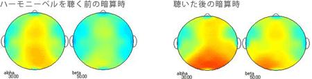 <被験者 1> 2ヶ月間毎日ハーモニーベルCDを聴いた後、ハーモニーベルCDを聴く前と聴いた後の暗算計算時の脳波 38歳男性の場合