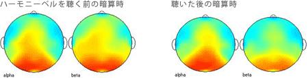<被験者 2> 2ヶ月間毎日ハーモニーベルCDを聴いた後、ハーモニーベルCDを聴く前と聴いた後の暗算計算時の脳波 35歳女性の場合