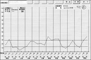 被験者A(35才女性)の経絡電位測定結果